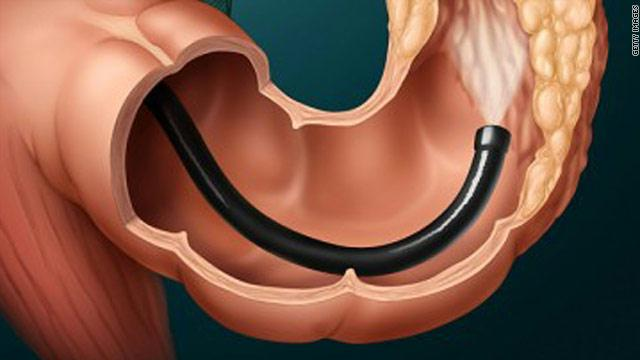 colonoscopy procedure position significantly - photo #19